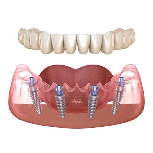 تفاوت ابمپلنت دندان