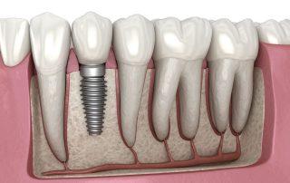 ایمپلنت دندانی معمولی