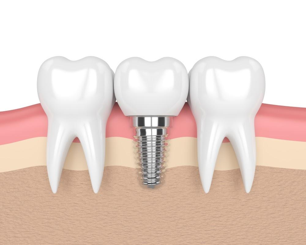 کاشت دندان توسط ایمپلنت