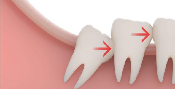 جراحی دندان عقل نهفته یا نیمه نهفته