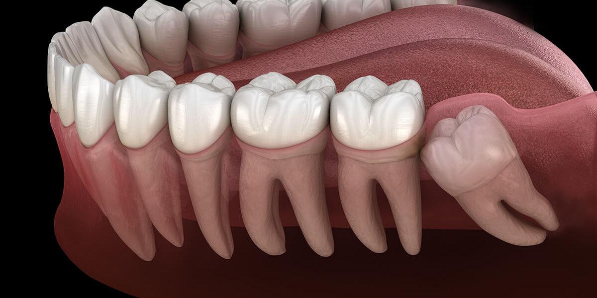 علت درد دندان عقل