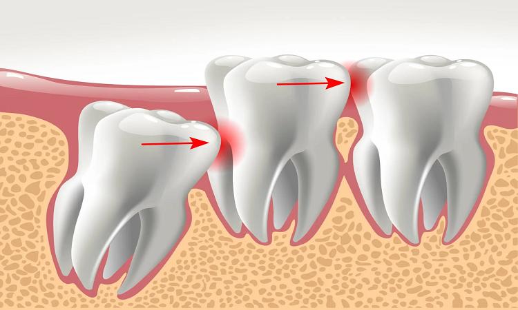 جراحی دندان عقل نهفته