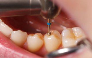 فیلینگ یا پرکردن دندان