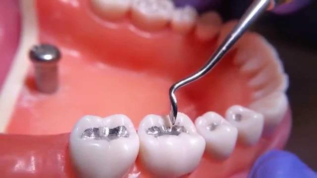 فیلینگ دندان چیست؟